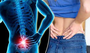How Bonitas Tackles Back Pain